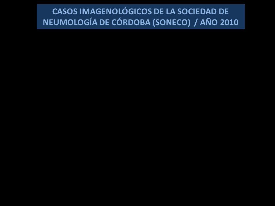 CASOS IMAGENOLÓGICOS DE LA SOCIEDAD DE NEUMOLOGÍA DE CÓRDOBA (SONECO) / AÑO 2010