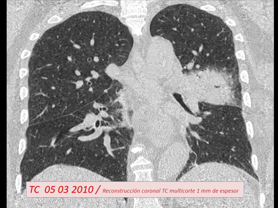 TC 05 03 2010 / Reconstrucción coronal TC multicorte 1 mm de espesor