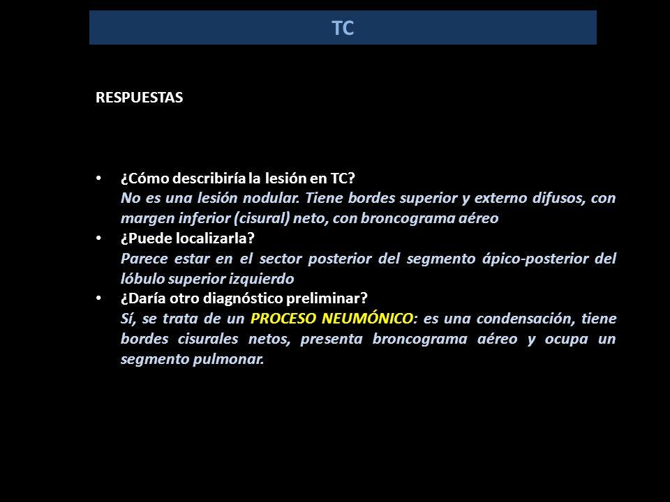 TC RESPUESTAS ¿Cómo describiría la lesión en TC. No es una lesión nodular.