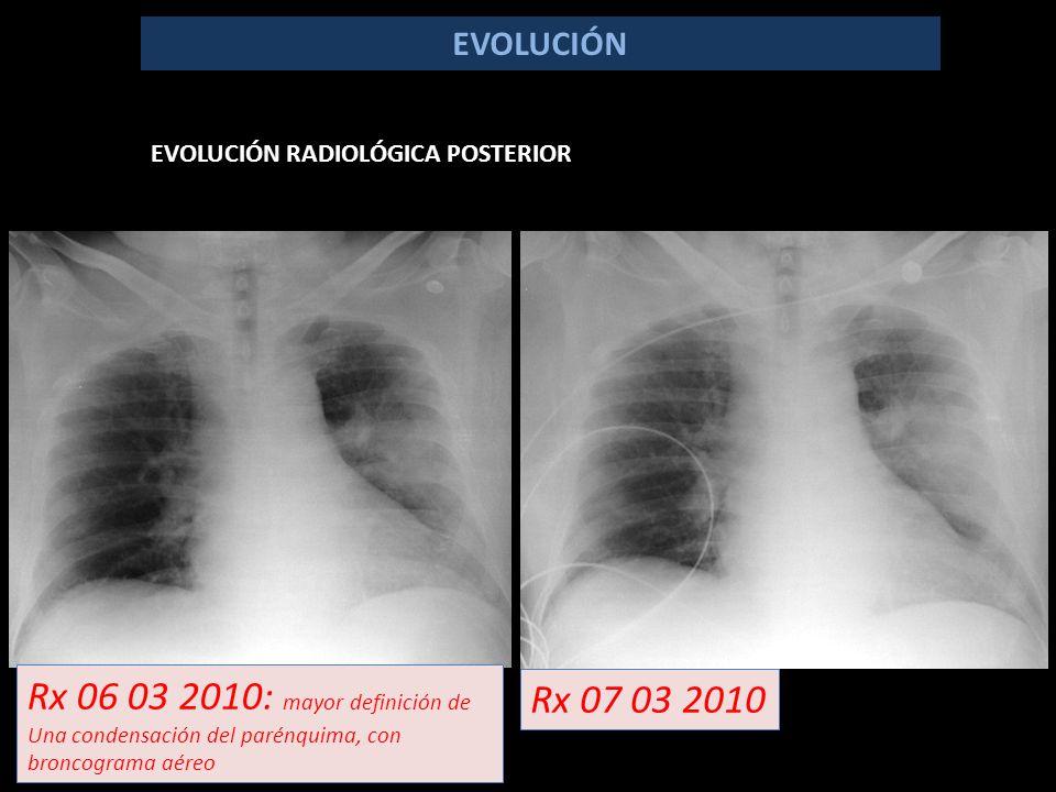 EVOLUCIÓN EVOLUCIÓN RADIOLÓGICA POSTERIOR Rx 06 03 2010: mayor definición de Una condensación del parénquima, con broncograma aéreo Rx 07 03 2010