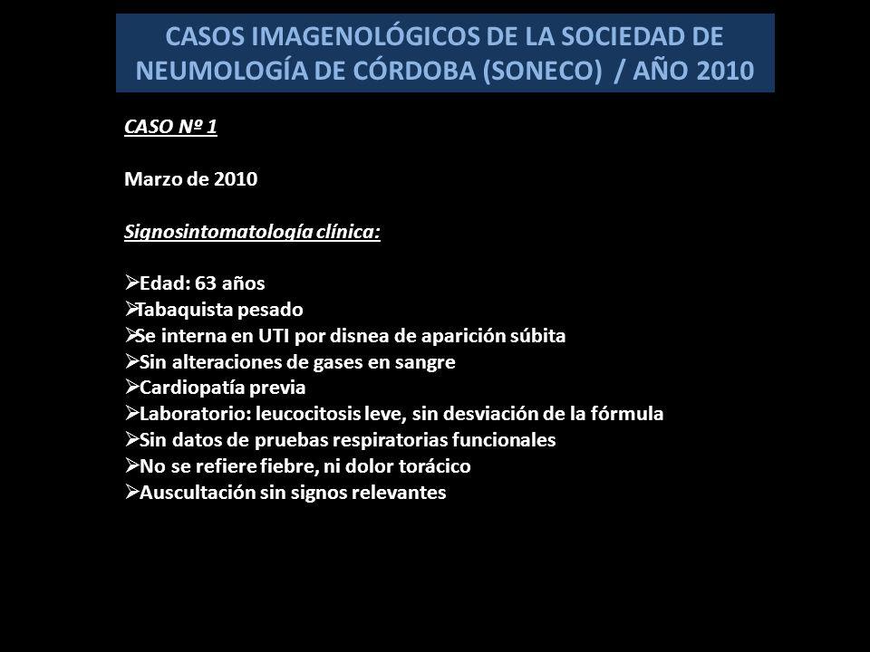 TC VALOR DIDÁCTICO DEL CASO 1.Presentación clínica poco orientadora 2.Rx que plantea una lesión nodular en un fumador 3.Importancia estratégica y diagnóstica de la TC