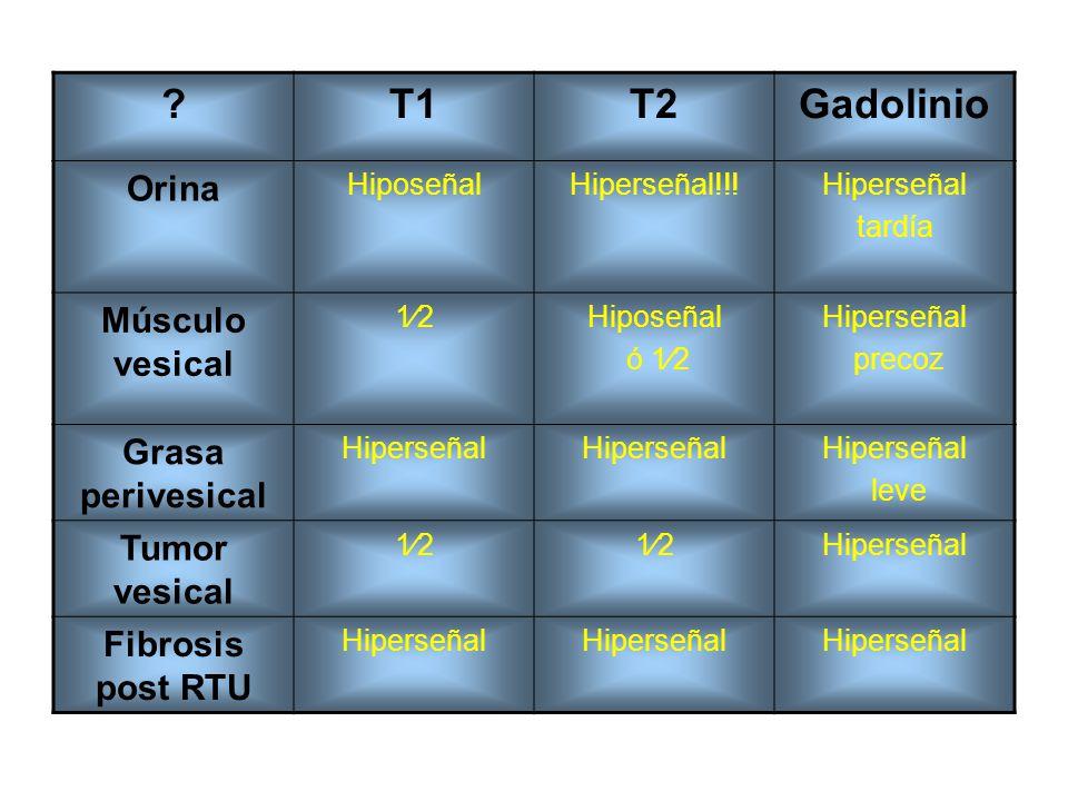 ?T1T2Gadolinio Orina HiposeñalHiperseñal!!!Hiperseñal tardía Músculo vesical 12Hiposeñal ó 12 Hiperseñal precoz Grasa perivesical Hiperseñal leve Tumo