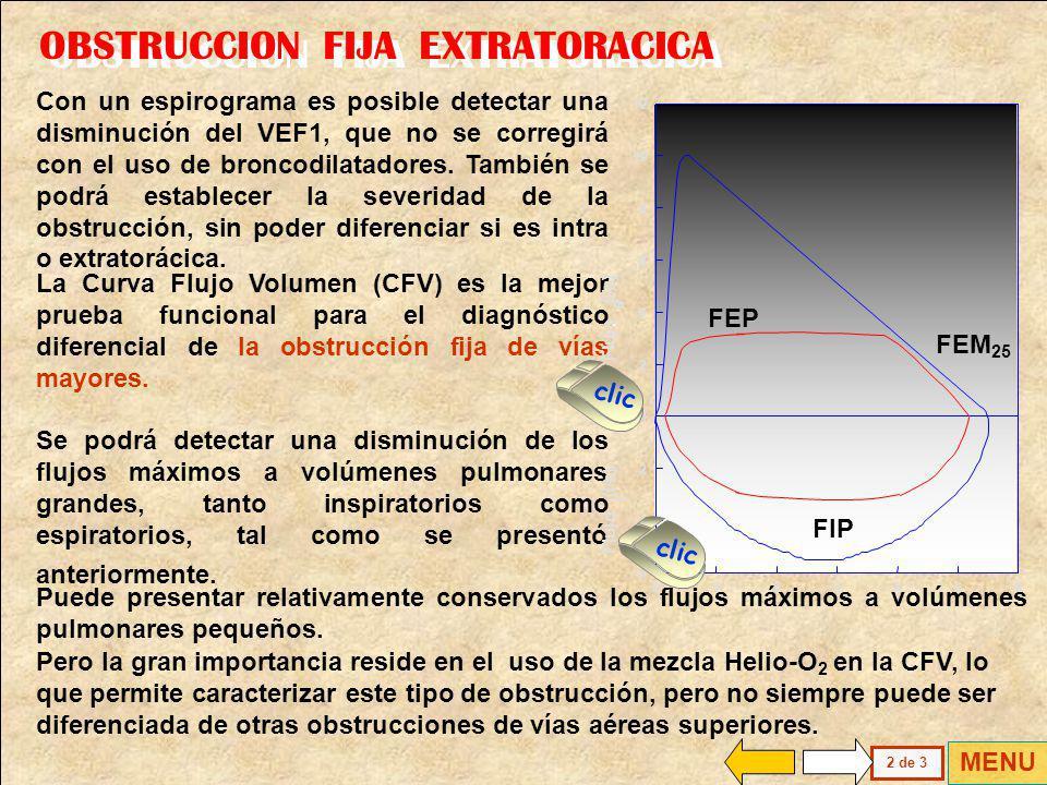 En la Obstrucción Fija Extratorácica está presente una reducción de igual magnitud de los flujos inspiratorios espiratorios La vía afectada es rígida