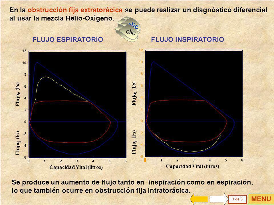 La Curva Flujo Volumen (CFV) es la mejor prueba funcional para el diagnóstico diferencial de la obstrucción fija de vías mayores. Se podrá detectar un