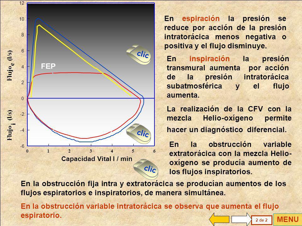 INSPIRACION Resistencia < ESPIRACION Resistencia > Pt > Ppl Pt < Ppl OBSTRUCCION VARIABLE INTRATORACICA La obstrucción variable intratorácica presenta