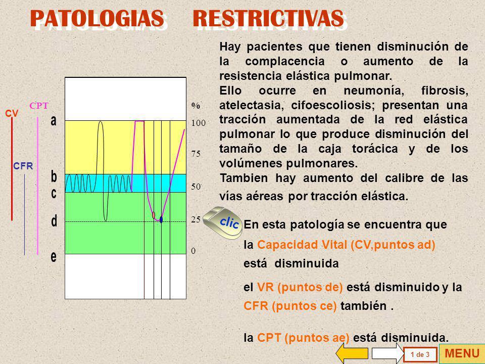 Es una prueba de escasa diferenciación diagnóstica en comparación con la alta especifidad existente en el caso de la obstrucción de las vías aéreas ma
