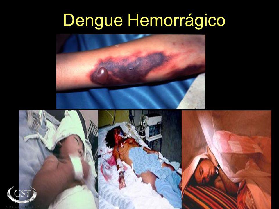 SI ESTO NO TE HACE REFLEXIONAR SOBRE ESTE PROBLEMA MIRA LO QUE TE PRESENTAMOS ACONTINUACIÒN Dengue Hemorrágico