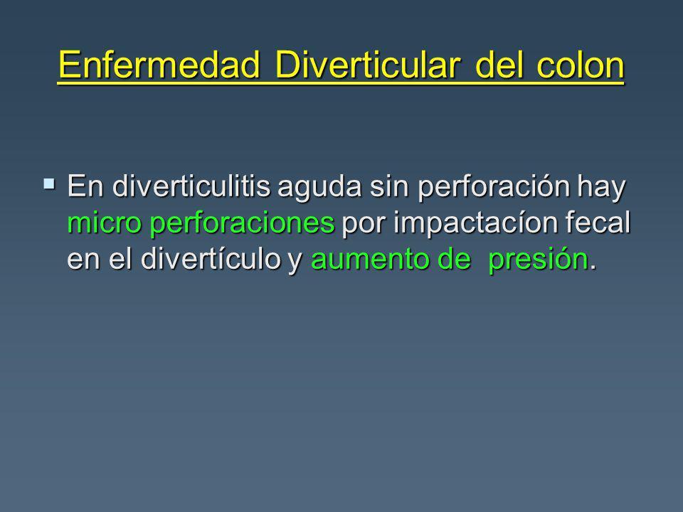 Enfermedad Diverticular del colon En diverticulitis aguda sin perforación hay micro perforaciones por impactacíon fecal en el divertículo y aumento de presión.