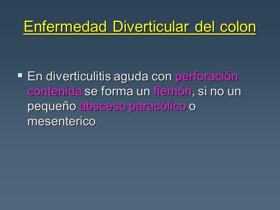Enfermedad Diverticular del colon En diverticulitis aguda con perforación contenida se forma un flemón, si no un pequeño absceso paracólico o mesenterico En diverticulitis aguda con perforación contenida se forma un flemón, si no un pequeño absceso paracólico o mesenterico