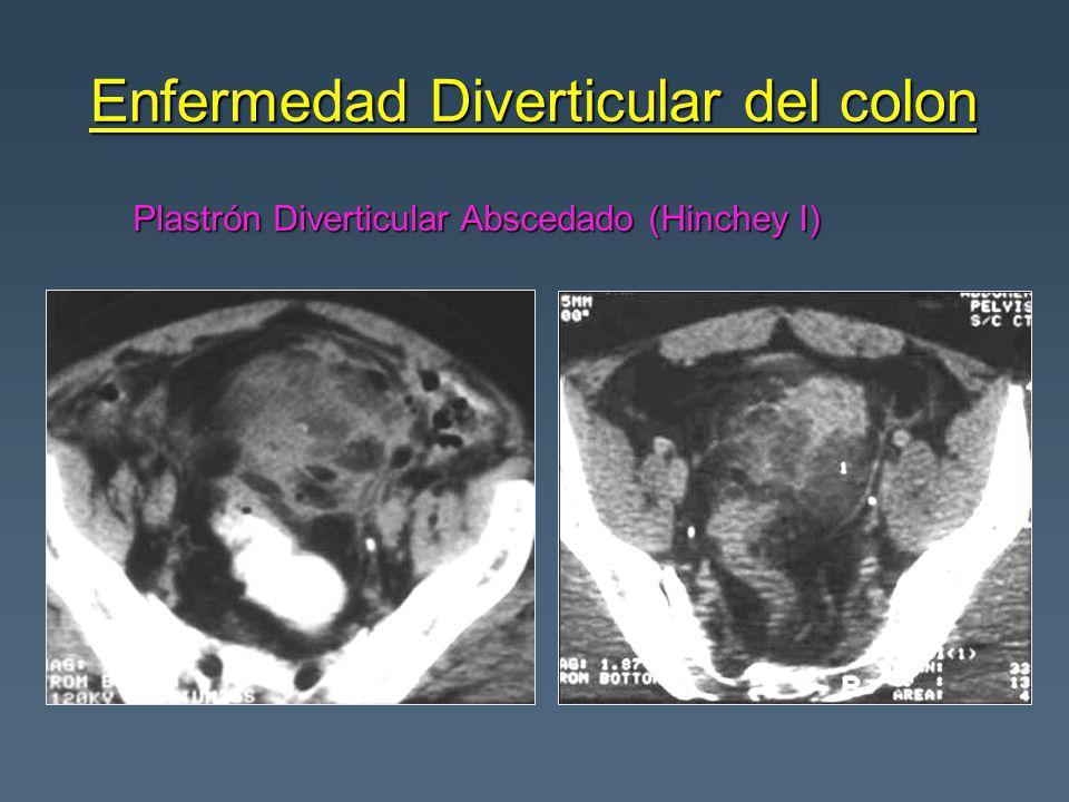 Plastrón Diverticular Abscedado (Hinchey I)