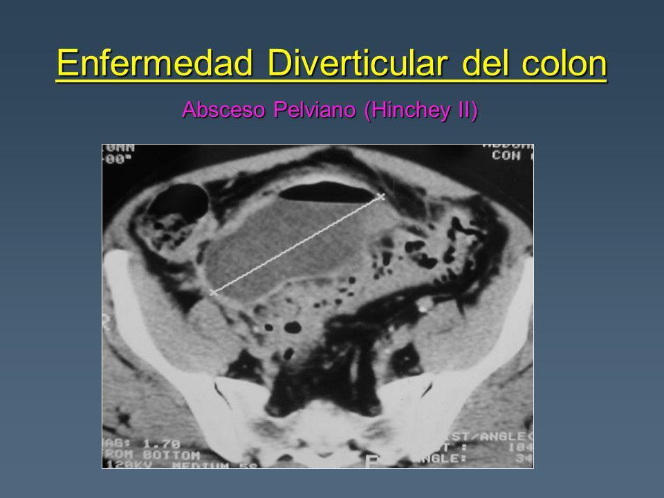 Enfermedad Diverticular del colon Absceso Pelviano (Hinchey II)