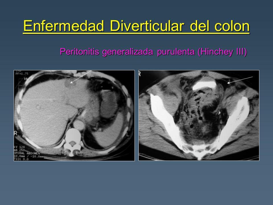 Enfermedad Diverticular del colon Peritonitis generalizada purulenta (Hinchey III)