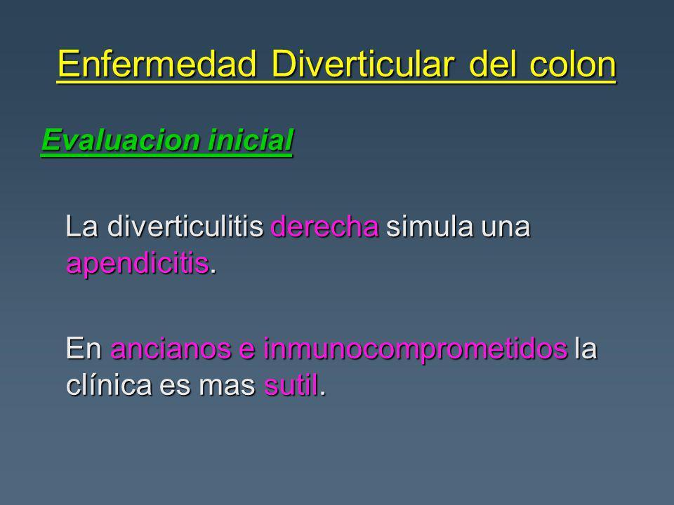Enfermedad Diverticular del colon Evaluacion inicial La diverticulitis derecha simula una apendicitis.
