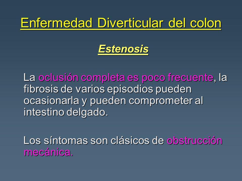 Enfermedad Diverticular del colon Estenosis Estenosis La oclusión completa es poco frecuente, la fibrosis de varios episodios pueden ocasionarla y pueden comprometer al intestino delgado.