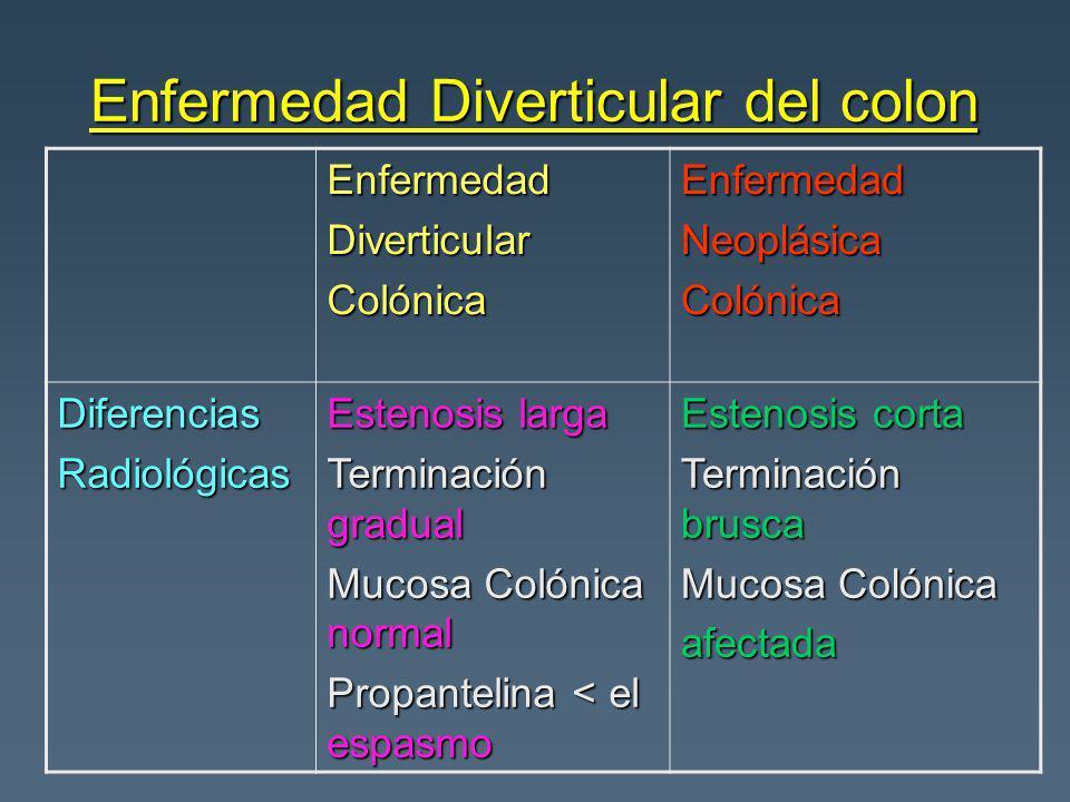 Enfermedad Diverticular del colon EnfermedadDiverticularColónicaEnfermedadNeoplásicaColónica DiferenciasRadiológicas Estenosis larga Terminación gradu