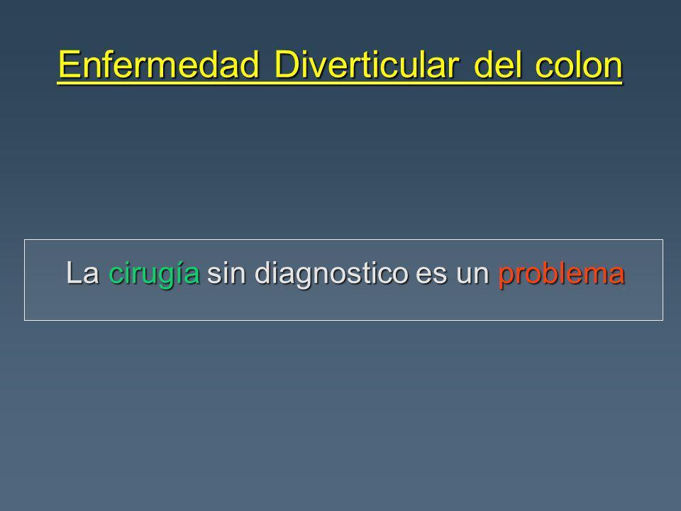Enfermedad Diverticular del colon La cirugía sin diagnostico es un problema La cirugía sin diagnostico es un problema