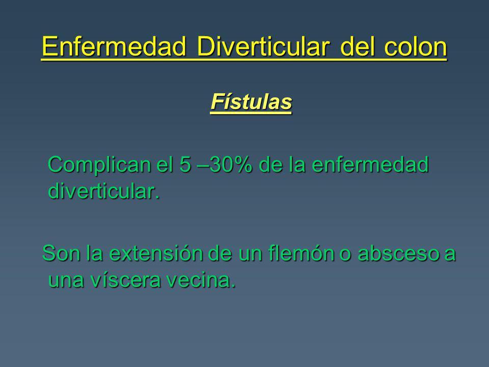 Enfermedad Diverticular del colon Fístulas Fístulas Complican el 5 –30% de la enfermedad diverticular. Complican el 5 –30% de la enfermedad diverticul