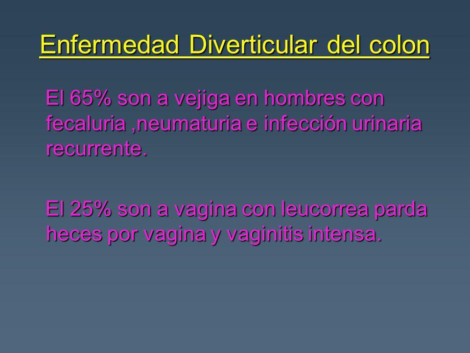 Enfermedad Diverticular del colon El 65% son a vejiga en hombres con fecaluria,neumaturia e infección urinaria recurrente. El 65% son a vejiga en homb
