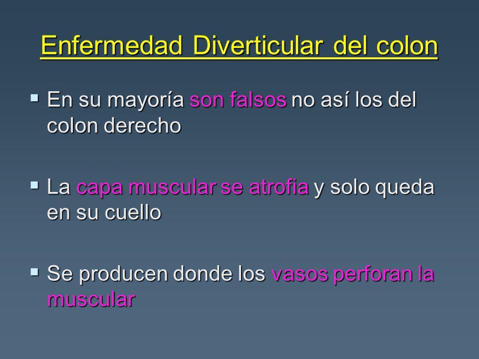 Enfermedad Diverticular del colon En su mayoría son falsos no así los del colon derecho En su mayoría son falsos no así los del colon derecho La capa