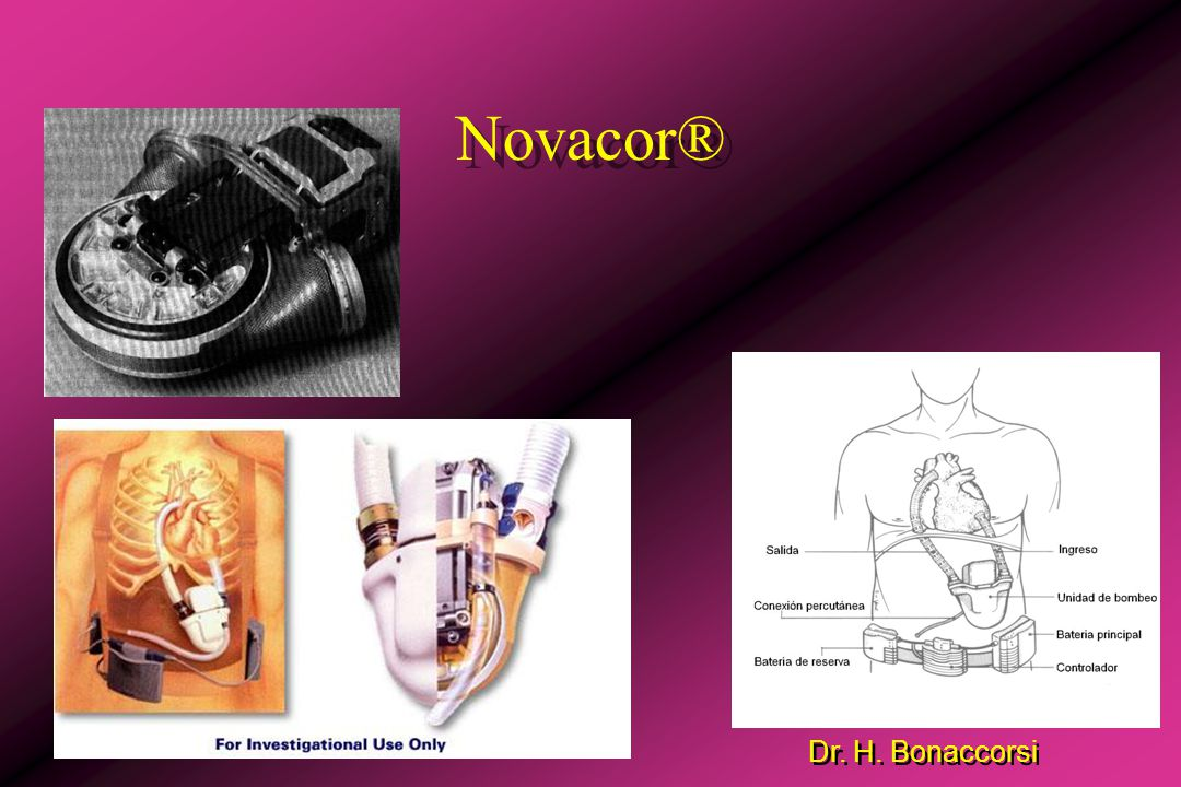 Dr. H. Bonaccorsi HeartMate®