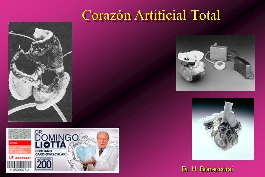 Dr. H. Bonaccorsi Mini bombas de flujo axial