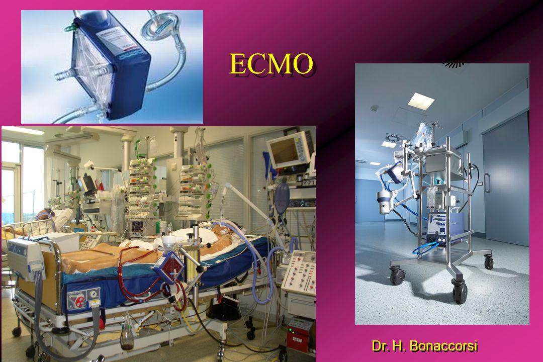 Dr. H. Bonaccorsi ECMO