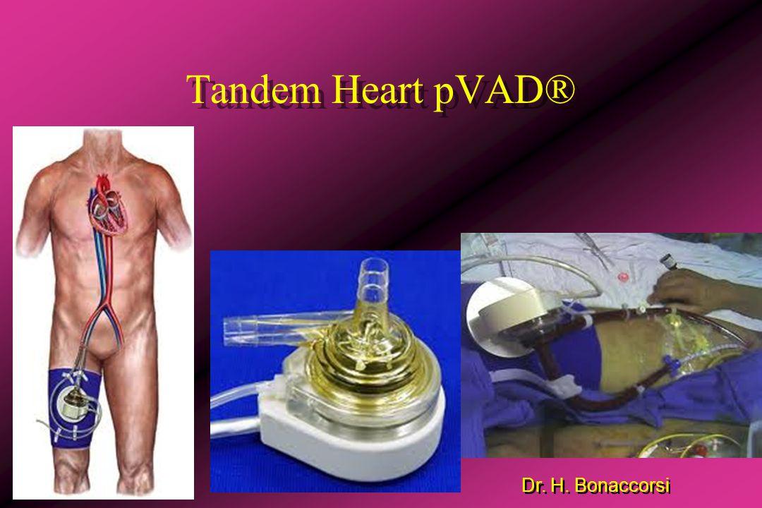 Dr.H. Bonaccorsi Terapia de apoyo o reemplazo cardíaco Objetivos: 1-Disminuir el trabajo cardíaco.