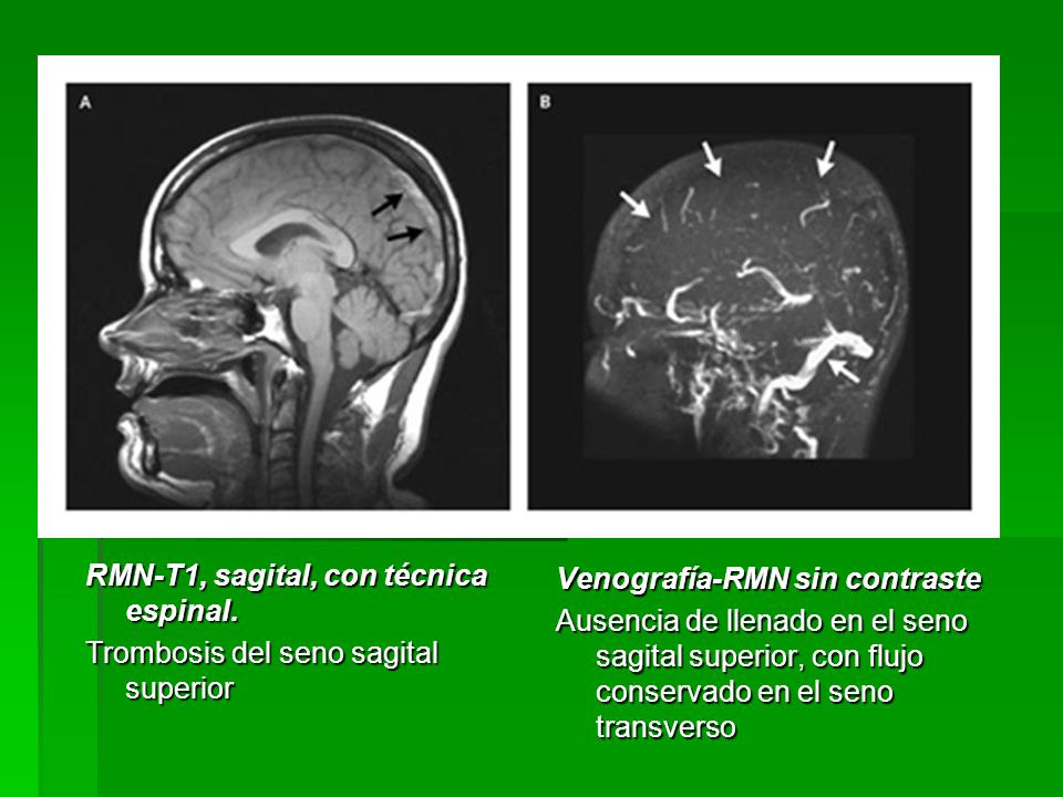 RMN-T1, sagital, con técnica espinal. Trombosis del seno sagital superior Venografía-RMN sin contraste Ausencia de llenado en el seno sagital superior