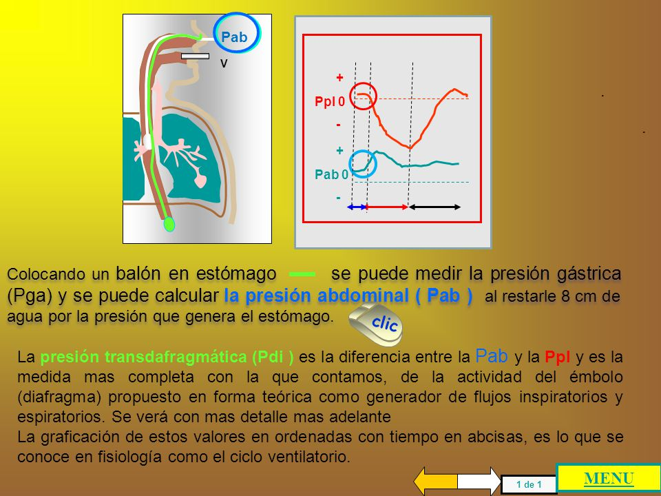 5 4 3 2 1 - 10 0 +10 +20 Capacidad Vital litros GENERACION DE PEEPi PTP V Colocando un balón en esófago se puede medir la presión pleural (Ppl) que al