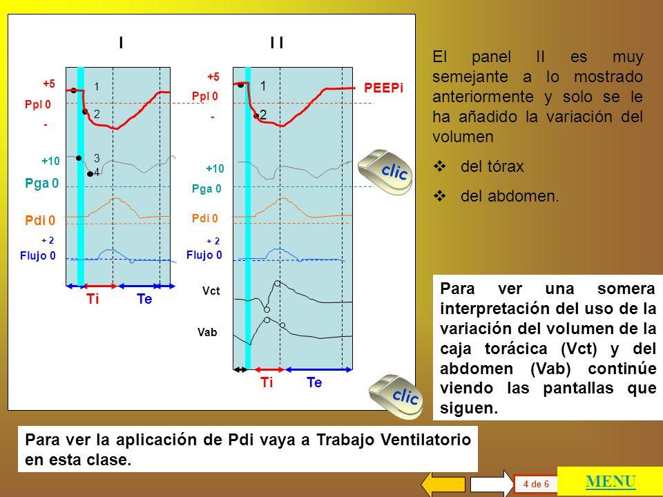 El panel I muestra un individuo en el que la Pga aumenta durante la espiración por actividad de los músculos espiratorios y está aumentada en el comie