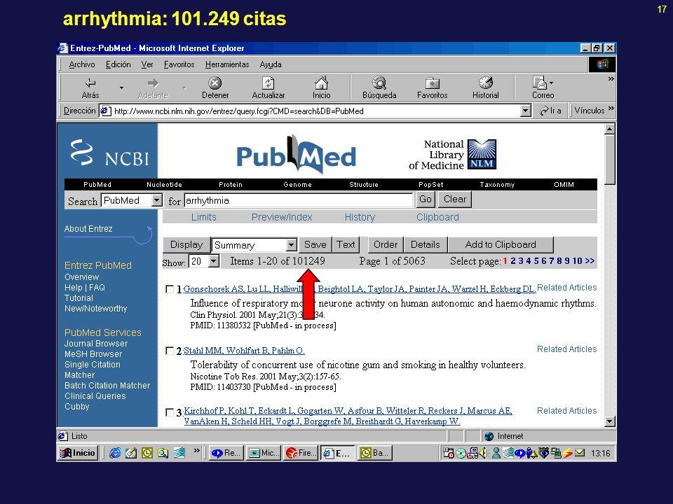17 arrhythmia: 101.249 citas