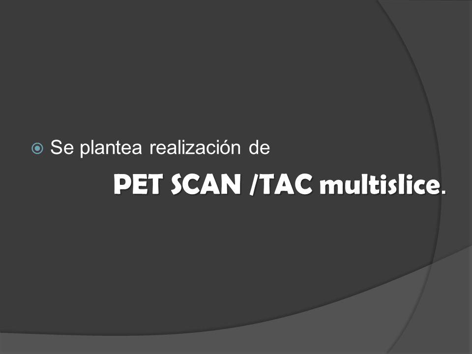 Se plantea realización de PET SCAN /TAC multislice.