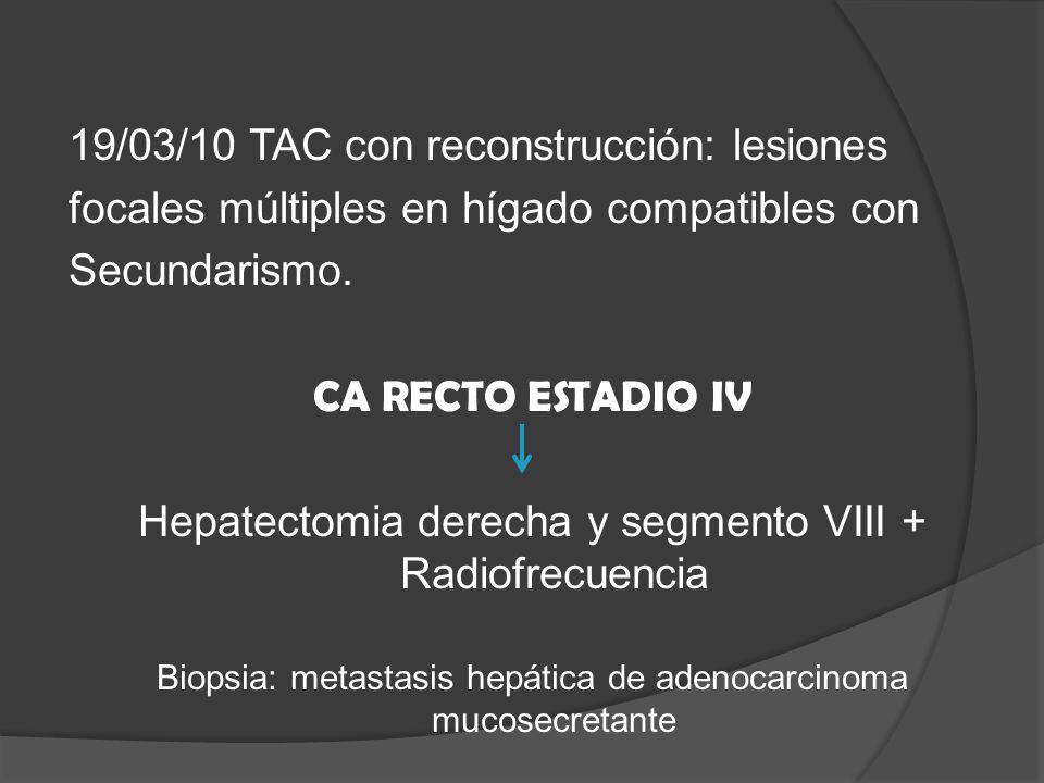 19/03/10 TAC con reconstrucción: lesiones focales múltiples en hígado compatibles con Secundarismo.