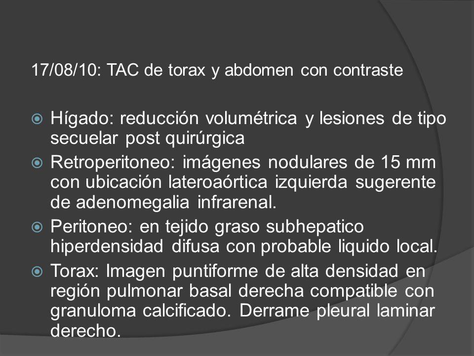17/08/10: TAC de torax y abdomen con contraste Hígado: reducción volumétrica y lesiones de tipo secuelar post quirúrgica Retroperitoneo: imágenes nodulares de 15 mm con ubicación lateroaórtica izquierda sugerente de adenomegalia infrarenal.
