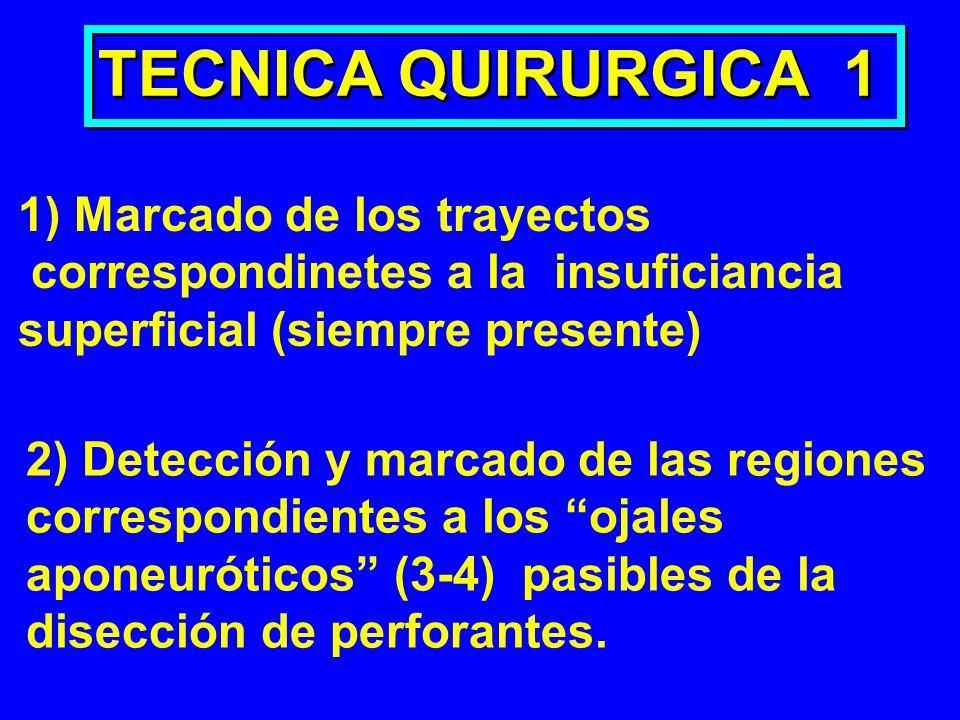 TECNICA QUIRURGICA 1 1) Marcado de los trayectos correspondinetes a la insuficiancia superficial (siempre presente) 2) Detección y marcado de las regi