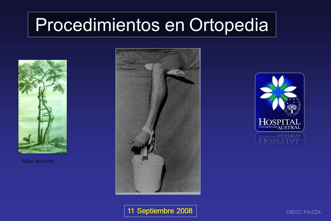 Yesos Tracciones Osteosíntesis Osteotomías Artrodesis Artroplastias Cementación Resección Curetaje y relleno Reducción de fracturas Injertos (Auto y aloinjertos) Procedimientos en OyT Nicholas Andry (1658-1759)