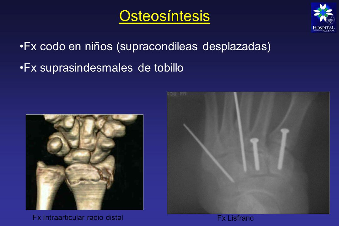 Osteosíntesis Materiales de Osteosíntesis -Tornillos solos - Placas con tornillos - Dispositivos endomedulares - Clavijas