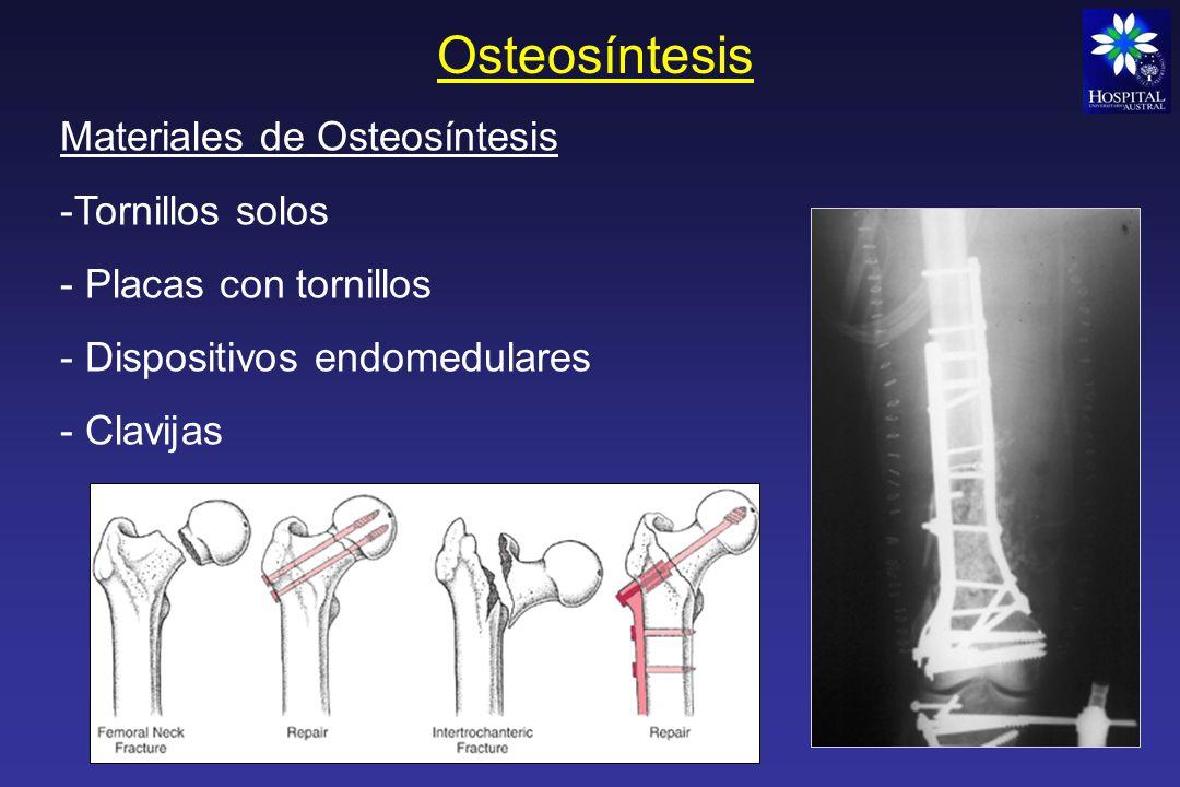 Osteosíntesis Clavo endomedular acerrojado de tibia