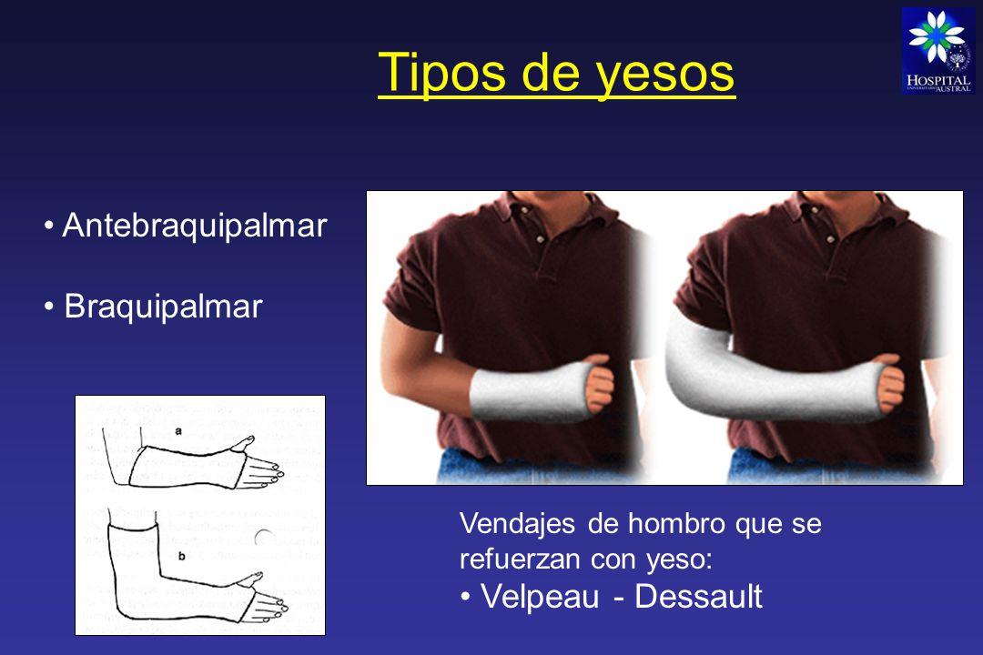 Tipos de yesos Bota corta Calza (inguinomaleolar ) Bota larga (cruropedio)