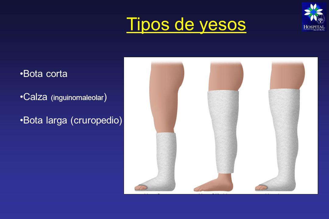 Tipos de yesos Minerva - Corsé Pelvipedio – Toracopedio (Lesiones de raíces de miembros y segmentos proximales)