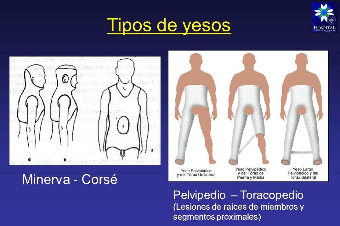 Tipos de yesos