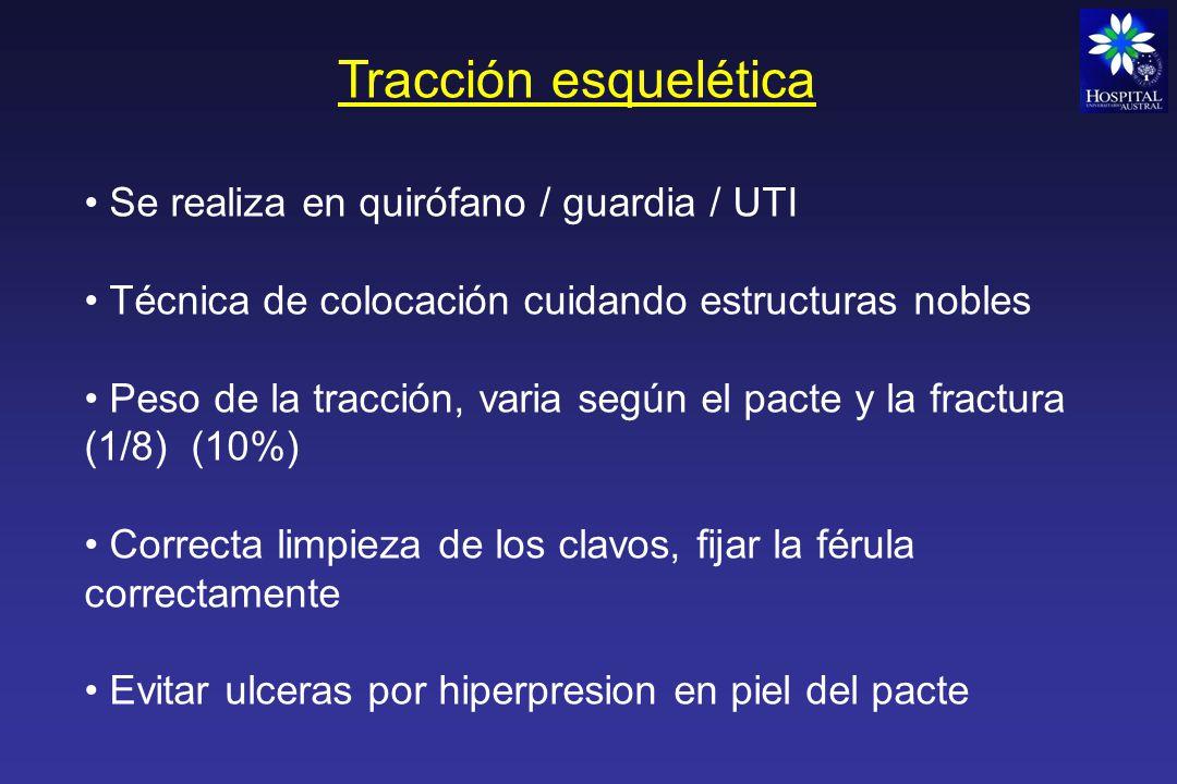 Tracción esquelética Tracción esquelética supracondilea Utiliza un sistema de poleas o férulas (Putti, Braun, Bohler, etc..)