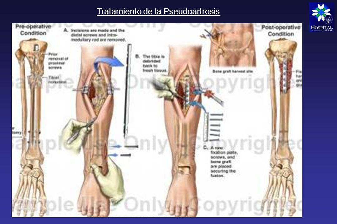 Síndrome compartimental Urgencia traumatológica Fracturas cerradas Traumatismos importantes Yesos compresivos Hacer diagnostico rápido: Dolor a la movilización pasiva, relleno capilar enlentecido, parestesias, el pulso puede ser normal No mas de 6 a 8 hs de tiempo: necrosis muscular Pierna, muslo, antebrazo, pie Tratamiento: Fasciotomia amplia de los compartimentos afectados