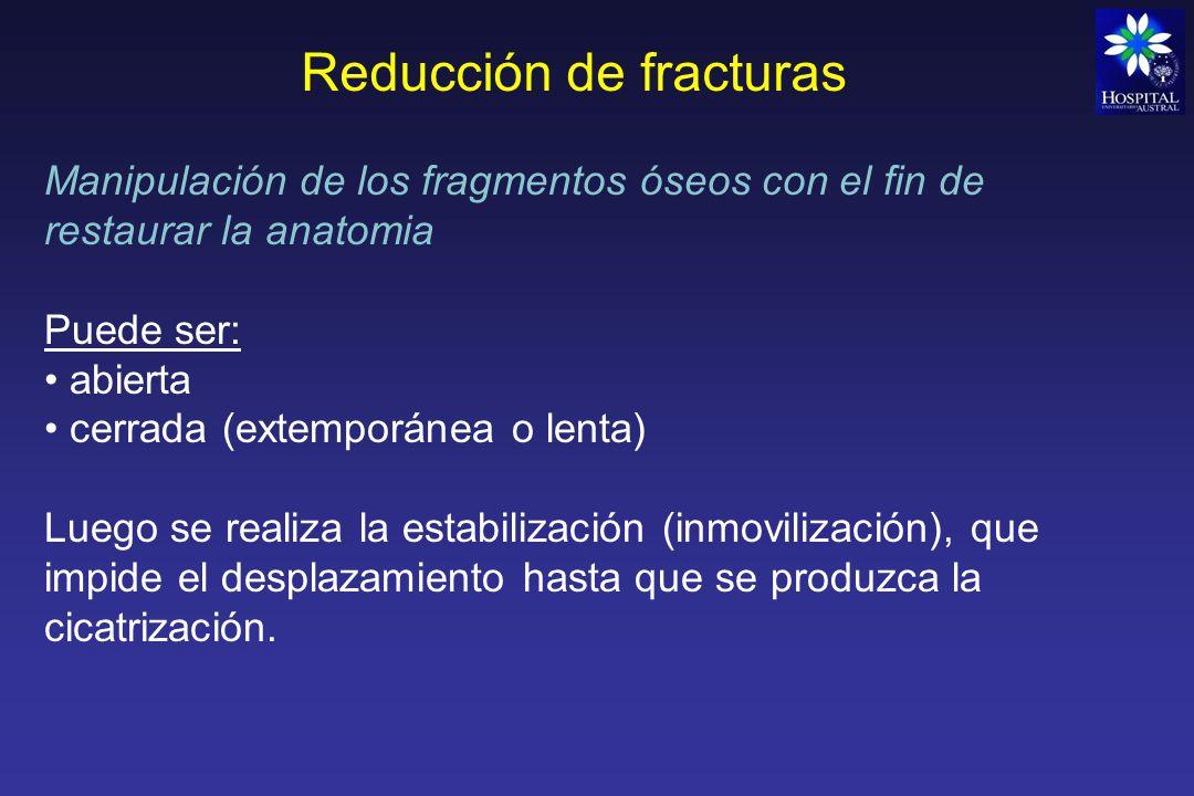 Reducción de fracturas Reducción cerrada: No se abre el foco de fractura, se alinean los fragmentos en forma incruenta.