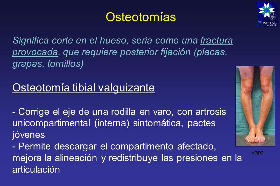 Osteotomías Cuña Sustractiva lateral