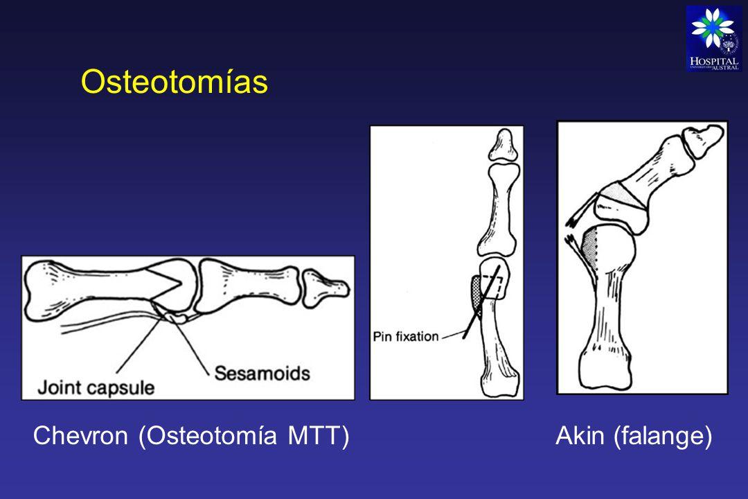 Artrodesis Es una operación que tiene por objetivo fijar una articulación enferma Indicaciones: - Infecciones - Tumores - Traumatismos - Parálisis - Artrosis - Artritis reumatoidea