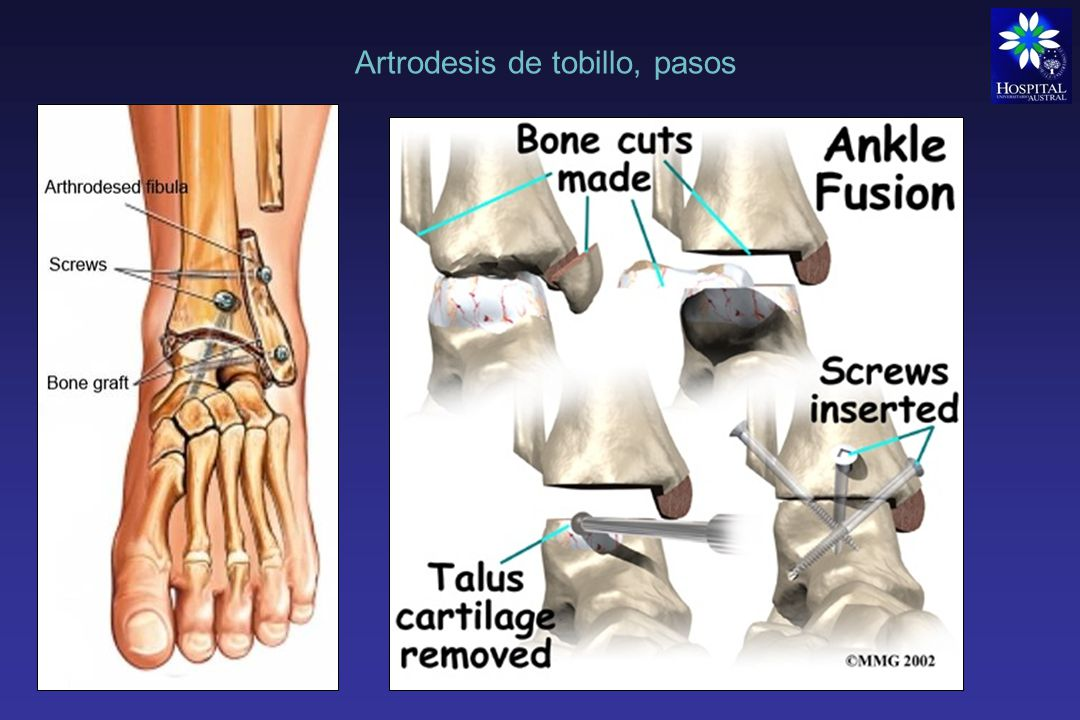 Artrodesis Artrodesis rodilla Rara como cirugía primaria debido al éxito de la prótesis de rodilla Indicaciones: Rescate de RTR fallida Anquilosis dolorosa tras infección TBC o traumatismos Deformidades graves con parálisis Artropatías neuropaticas Lesiones malignas Dificultades estéticas, sentarse, levantarse de caídas, transportes públicos, etc.