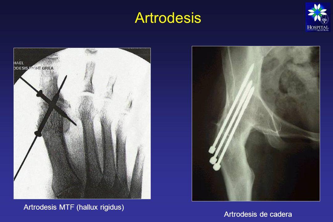 Artroplastia Es una operación para devolver la movilidad a una articulación, y la función a los músculos, ligamentos y demás estructuras que controlan la articulación Se comenzo con artroplastias de resección simple, intentando crear una Pseudoartrosis.