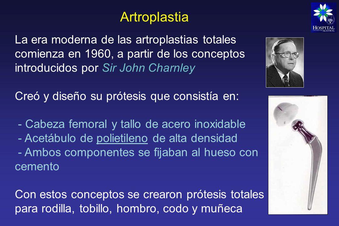 Artroplastia - Alto índice de fracasos de las prótesis de tobillo y muñeca, se dejaron de usar rápidamente.