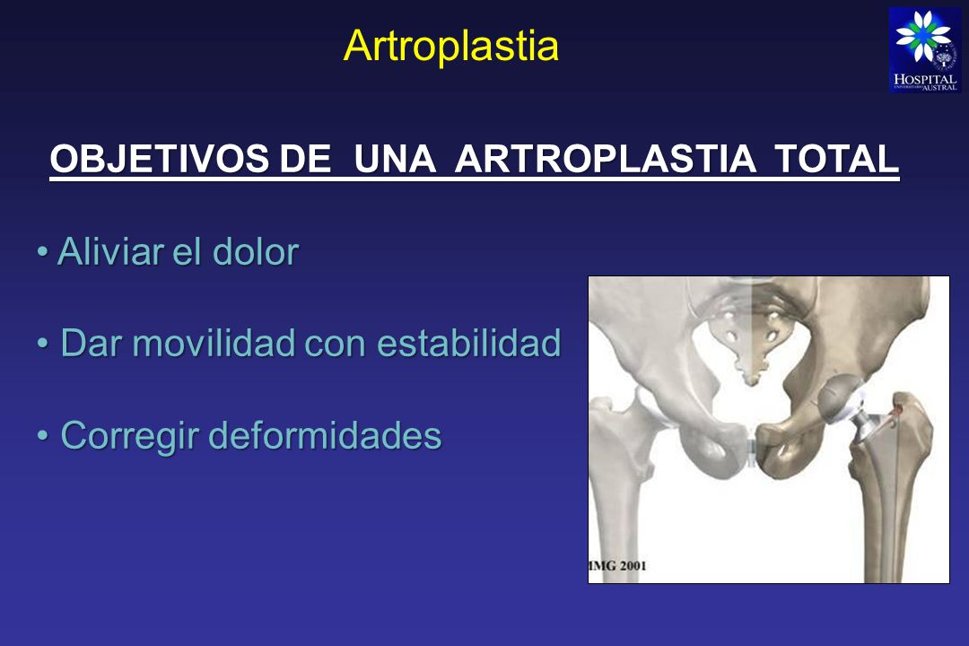 Artroplastia Indicación de artroplastia Articulación artrosica dolorosa incapacitante (que no responde a tto conservador) Contraindicación absoluta Infección reciente o actual en la articulación